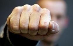 В Новой Одессе, хулиган напал на полицейского и покусал его (Фото)
